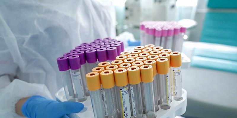 Алексей Хрипун, антитела, врачи-эпидемиологи, ДЗМ, иммунитет, коронавирус, коронавирусная инфекция, тестирование